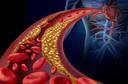 Estudo sugere que o evinacumabe reduz o colesterol LDL em 50% na hipercolesterolemia refratária