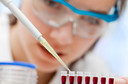 Trombocitose pode ser um marcador de risco para o desenvolvimento de câncer em um futuro próximo